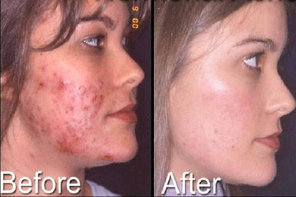 Cystic acne after makeup 6 makeup tutorials for acne coverage that